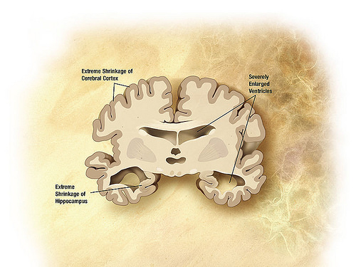 Restoring Order in the Brain